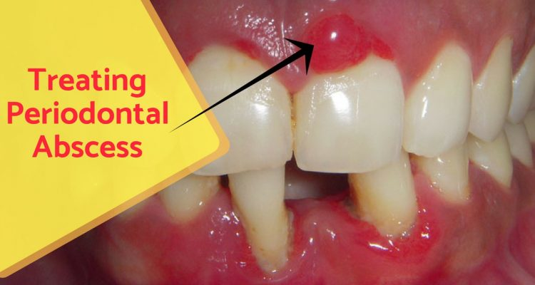 Periodontal abscess - Details and Treatment - Expert Dental Care
